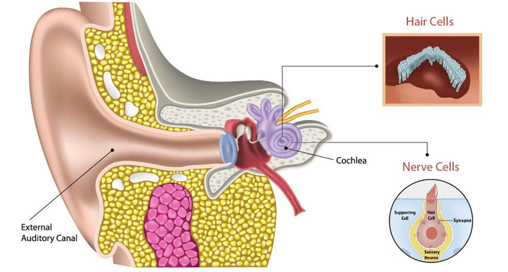 Hidden Hearing Loss – Not Measured by Common Test